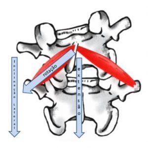 escoliose-4-dimesao-cranio-caudal.jpg